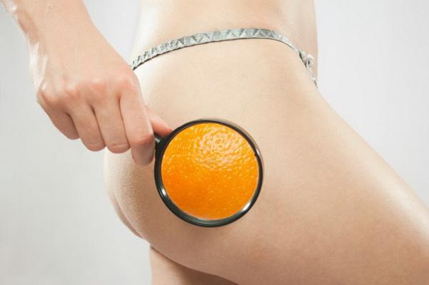 10 fakta om cellulitter